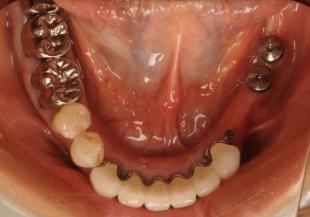 術後 入れ歯を外したところ 入れ歯が沈み込むのを防止するためにインプラントを埋入しています 短いインプラントしか入らないために念のためインプラントは2本埋入しました