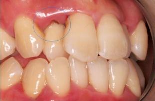 丸い印の部分に歯石が隠れています 歯茎がブヨブヨして血が出てきます