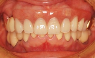 噛み合わせを上げ、適正な顎位になり顔つきも若返りました。下顎は入れ歯の代わりにインプラントを埋入し、奥歯でもしっかり噛めるようになり、噛み合わせが安定しました。