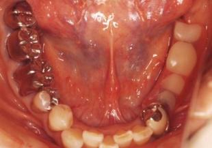 下の入れ歯は低すぎて上の入れ歯と当たっていません