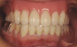 術後 下の前歯は部分矯正で整えて、上下できれいに噛めるようにしました