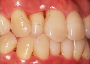 歯石を除去して2週間後 歯茎が引き締まってきました