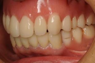 術後 上下の入れ歯でバランスを整えて、なんでも噛めるようになりました