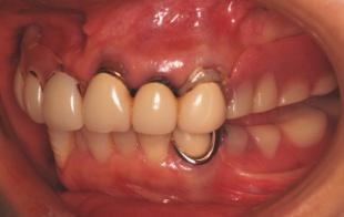 上下の入れ歯で隙間があります 左では全く物が食べれません