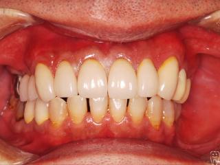 前歯部クラウンレングスニングにより歯を保存