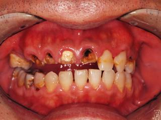 重度の虫歯 治療前