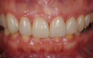 ラミネートベニアで歯の質感や形を修正しました