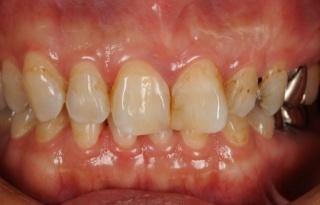 歯の表面性状が悪く、歯の軸がずれています