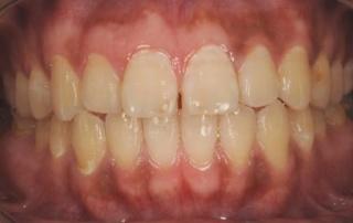 タバコの影響で、歯肉に少し黒ずみがあります