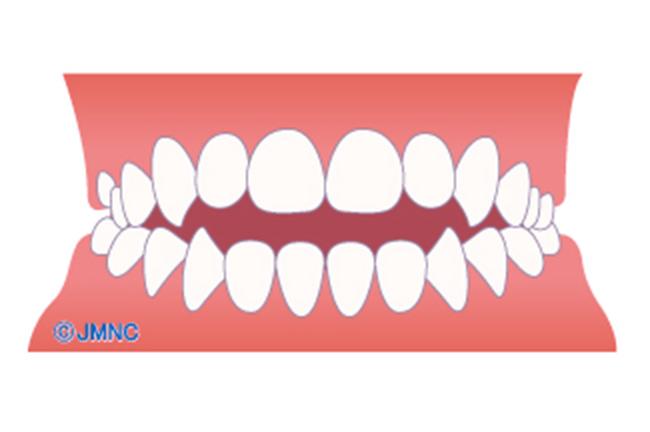 前歯の開き